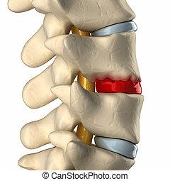 lateral, osteophyte, disco, formación, vista, degeneración