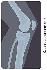 Lateral radiograph of human knee joint. Monochrome x-ray picture or radiographic monitor image of leg part, side view. Medical radiology of limb. Modern vector illustration in flat cartoon style.