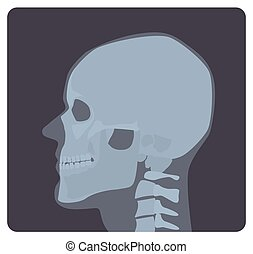 Lateral radiograph of skull. X-ray picture or radiographic image of head, side view. Modern medical radiography and human skeletal system. Monochrome vector illustration in flat cartoon style.