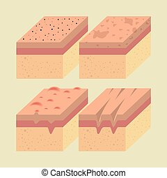 layers of skin types