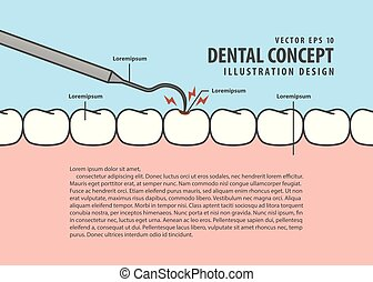 Layout decay tooth check up (Caries) cartoon style for info or book illustration vector. Dental concept.