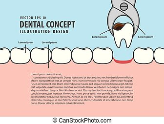 Layout decay tooth removal cartoon style for info or book illustration vector. Dental concept.