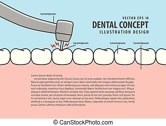 Layout decay tooth treatment (Caries) cartoon style for info or book illustration vector. Dental concept.