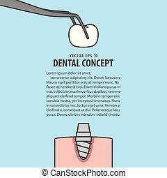 Layout Implant cartoon style for info or book illustration vector on blue background. Dental concept.