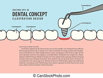Layout Implant teeth cartoon style for info or book illustration vector. Dental concept.