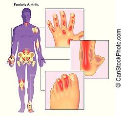 ledinflammation, psoriatic