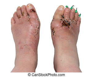 Left and Right Feet after Orthopedic Surgery - Left and...