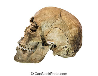 Left side view of human skull.