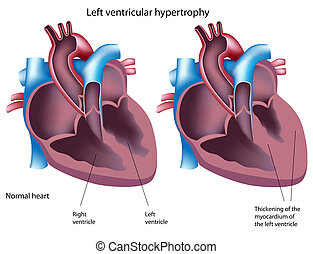 Left ventricular hypertrophy, eps8 - heart disease
