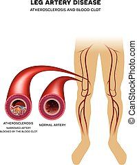Leg artery disease, Atherosclerosis - Healthy leg artery and...