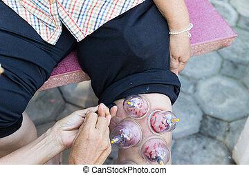 leg skin vacuum and Phlebotomy, the chinese alternative medicine