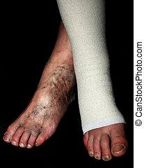 Leg. Varicose, veins. Phlebeurysm. Thrombophlebitis. Elastic bandage.
