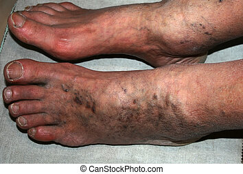 Leg. Varicose veins. Phlebeurysm. Thrombophlebitis. leg in veins