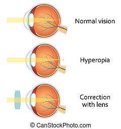 lente, positivo, hyperopia, corrected