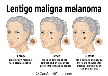 Lentigo maligna melanoma - The stages of transformation of...