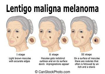 The stages of transformation of Lentigo maligna to invasive melanoma