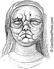 Leprosy or Hansen's Disease, vintage engraving - Leprosy or ...
