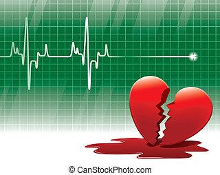 Lifeline - A lifeline in an electrocardiogram and a broken...