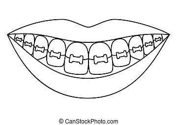 Line art black and white healthy smile in braces. Coloring...