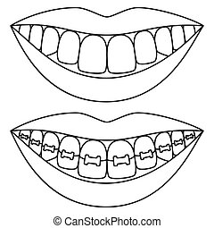 Line art black and white teeth aligning concept. Before and...