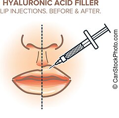 Lip injections, before and after. Hyaluronic acid filler. Vector illustration