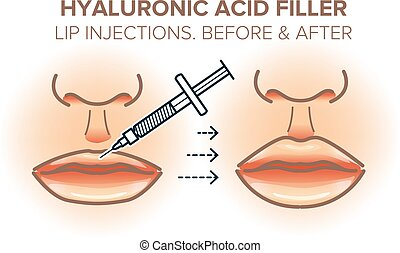 Lip injections. Hyaluronic acid filler. Before and after. Vector illustration