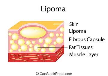 lipoma, fetthaltig, tumoren, tissues., befindlich, subkutan