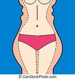 liposucción