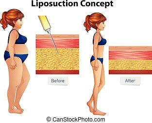liposucción, diagrama, concepto, humano