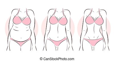 liposucción, mujer, después, antes