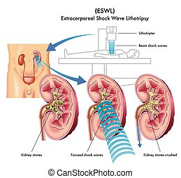medical illustration of the treatment of kidney stones with extracorporeal shock wave lithotripsy