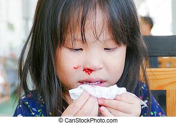 girl with bleeding nose