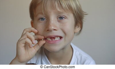 Little boy shows that some of his milk teeth had fallen out...