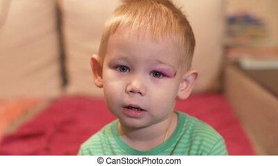 Little boy with a black eye