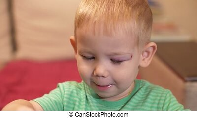 Little boy with a black eye playing with toys