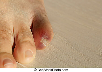 Little toe with severe inflammation and bruising. Injury,...
