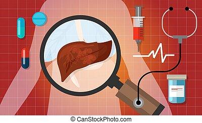 liver cancer disease illustration human anatomy sick unhealthy treatment medical