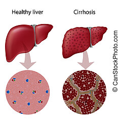 Liver disease Cirrhosis, eps10 - tissue of normal liver and ...