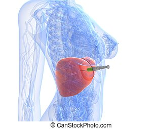 3d rendered illustration of a female anatomy with syringe in liver
