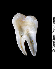 Longitudinal section from a human tooth isolated on black ...
