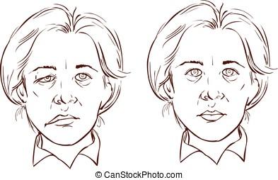 lopsided, facial, ilustração, vetorial, fundo, branca