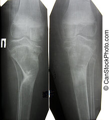 lower extremity after fracture  x-ray picture