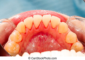 Lower Teeth - Lower teeth after ultrasonic plaque removal.