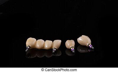 ludzki, concept., stomatologiczny, ceramiczny, wpaja, dentures., implant., czarne tło, zęby, closeup, ząb, albo