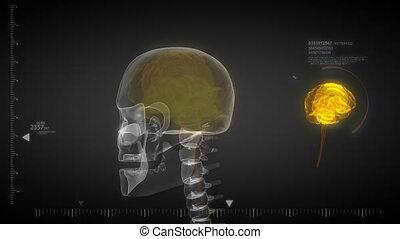 ludzki mózg, rentgenowski, skandować