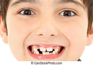 lukke, mangle, oppe, tænder
