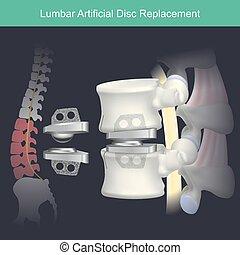 Lumbar Artificial Disc Replacement.