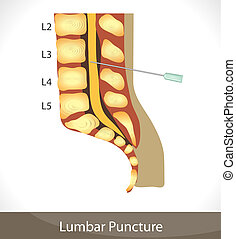 Lumbar puncture. - Detailed diagram of lumbar puncture