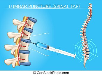 Lumbar Puncture Realistic Vector Medical Scheme - Lumbar...