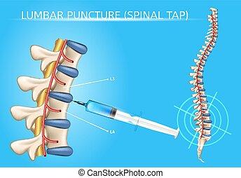 Lumbar Puncture Realistic Vector Medical Scheme